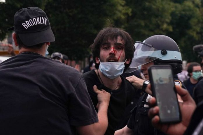Police Brutality Against Protesters Continue To Rise Across The Country - SurgeZirc US