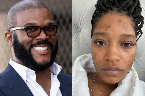 Tyler Perry Offered To Pay For My Skin Diseases Treatment - Actress Palmer - SurgeZirc US